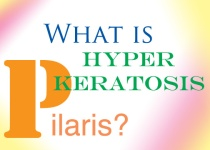 hyperkeratosis pilaris, keratosis pilaris
